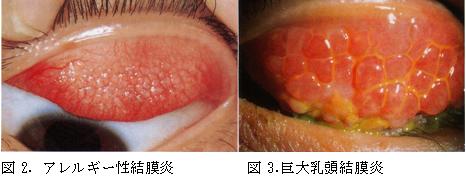性 結膜炎 アレルギー